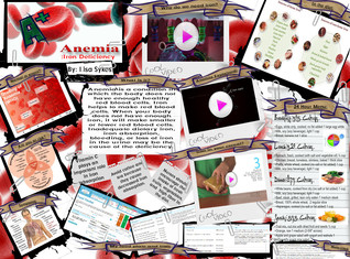 Anemia: Iron Deficiency